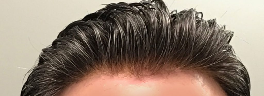 Things to know before visiting a hair transplant clinic